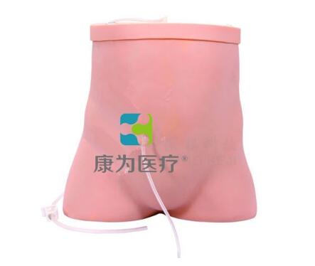 腹膜透析护理模型