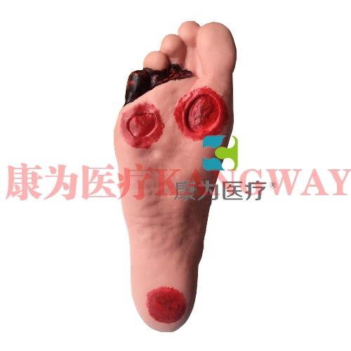 """""""康为医疗""""高级糖尿病足护理模型"""