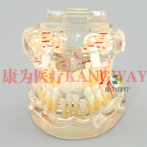 """""""康为医疗""""乳恒牙交替模型"""