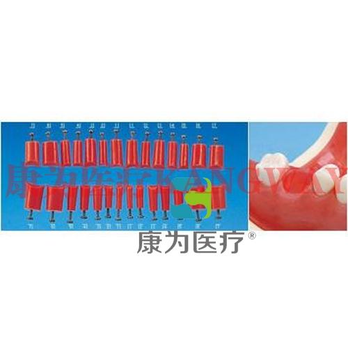 """""""康为医疗""""修复实习用缺失牙位插件"""