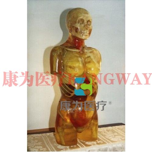 """""""康为医疗""""X线摄影定位用标准化模拟病人"""