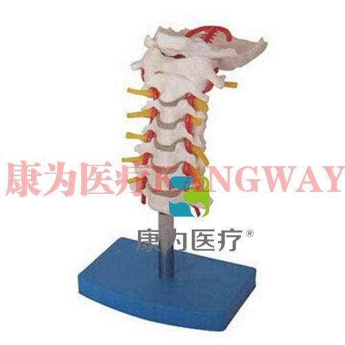 """""""康为医疗""""颈椎带颈动脉、后枕骨、椎间盘与神经模型"""