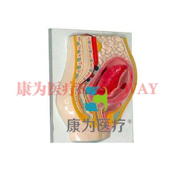 """""""康为医疗""""胎盘剥离模型"""