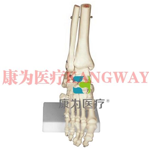 """""""康为医疗""""足骨模型"""
