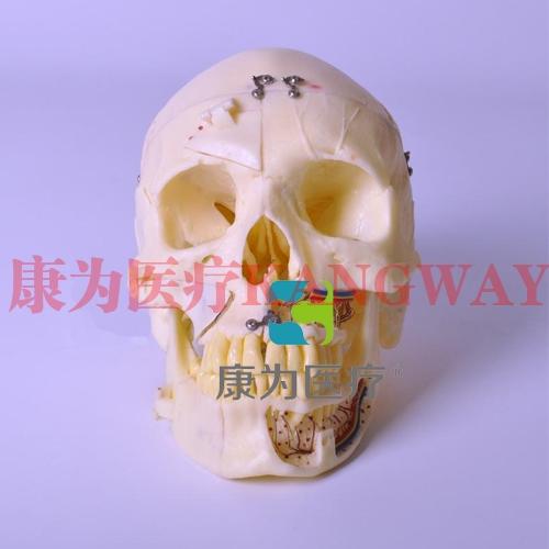 """""""康为医疗""""头颅模型 展示肌肉附着点"""