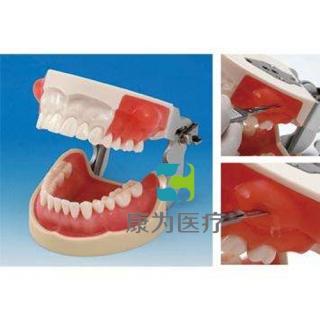 """""""康为医疗""""国家医师考试专用牙槽脓肿切开与牙体预备模型"""