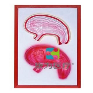 """""""康为医疗""""胃解剖浮雕模型"""