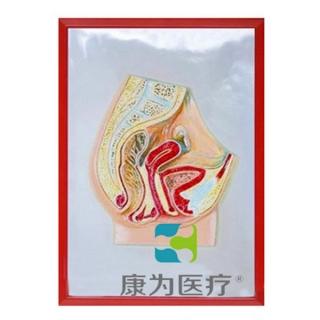 """""""康为医疗""""女性盆腔矢状切浮雕模型"""