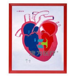 """""""康为医疗""""心脏解剖(示血液流向)浮雕万博手机版本登陆"""