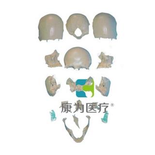 """""""康为医疗""""部分颅骨散骨模型"""