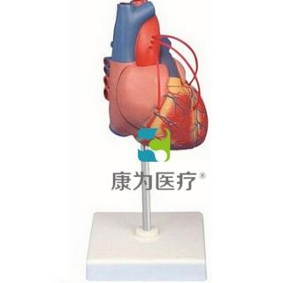 """""""康为医疗""""心脏搭桥模型"""
