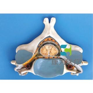 """""""康为医疗""""第五颈椎附脊髓和脊神经放大模型"""