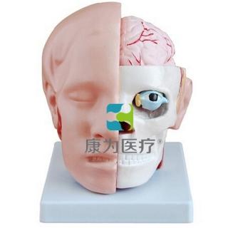 """""""康为医疗""""头解剖附脑动脉模型"""