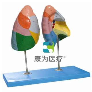 """""""康为医疗""""肺段模型"""