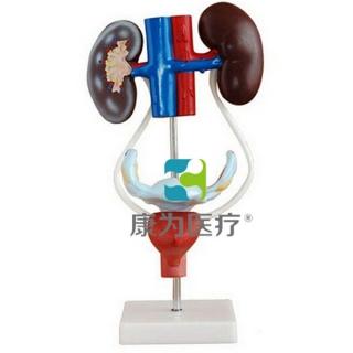 """""""康为医疗""""女性泌尿生殖系统解剖模型"""