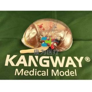 """""""康为医疗""""透明肾脏放大模型"""