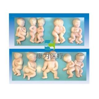 """""""康为医疗""""胎儿畸形模型"""
