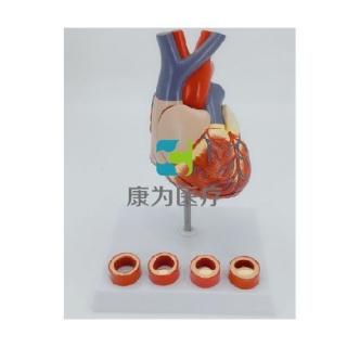 """""""康为医疗""""病态血管心脏演示模型"""